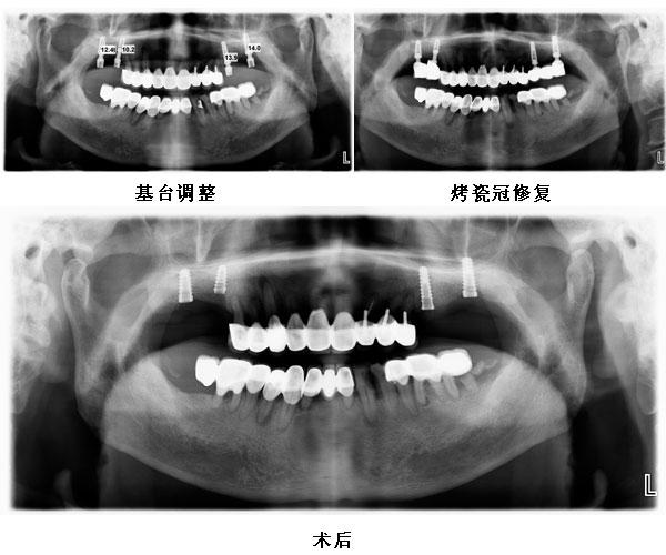患者左右上颌四颗后牙种植修复